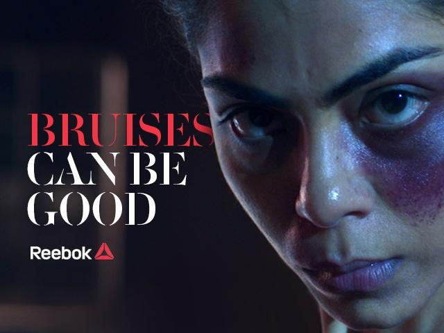 Thumbnail for #BruisesCanBeGood