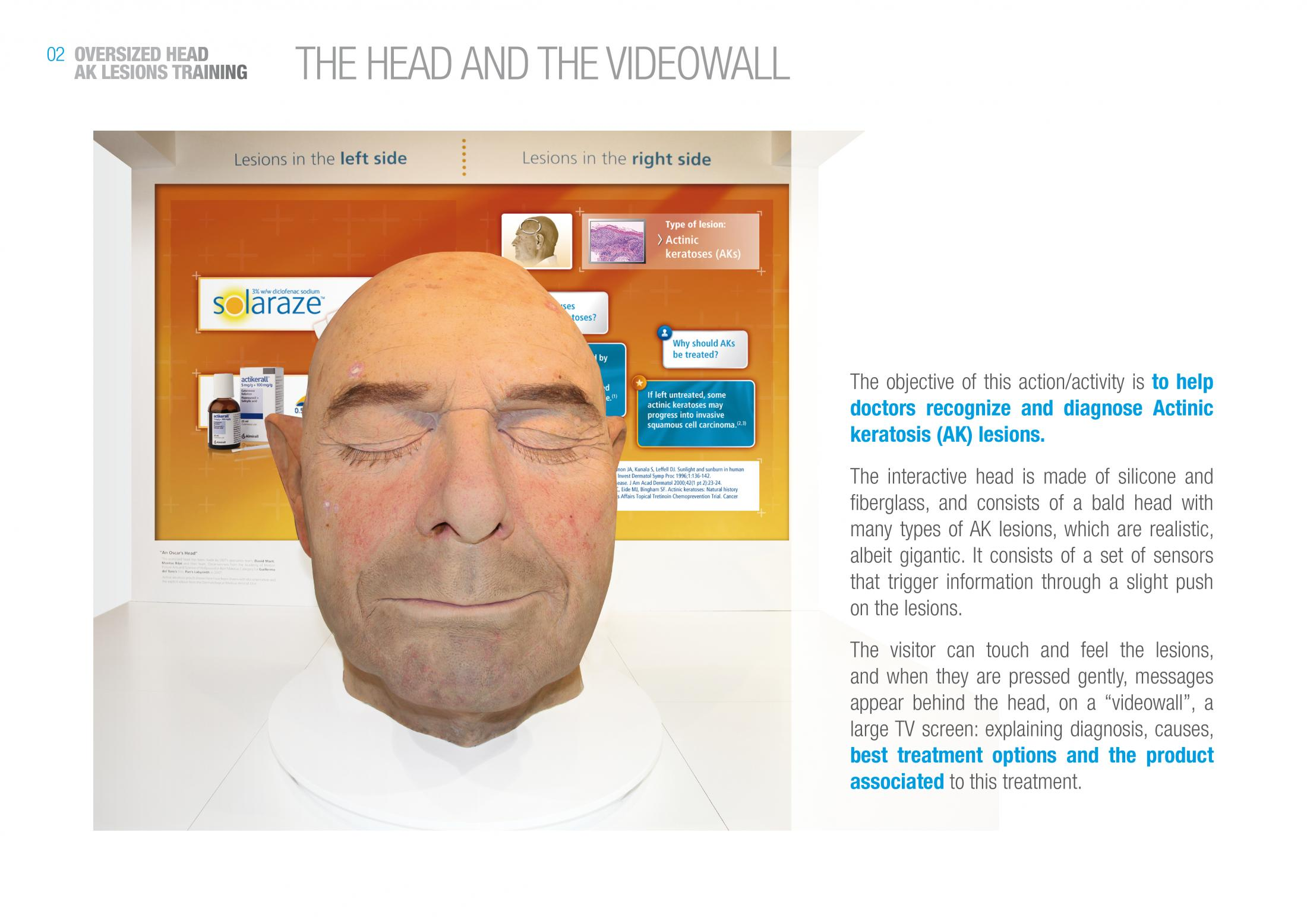 Thumbnail for Kim's Head
