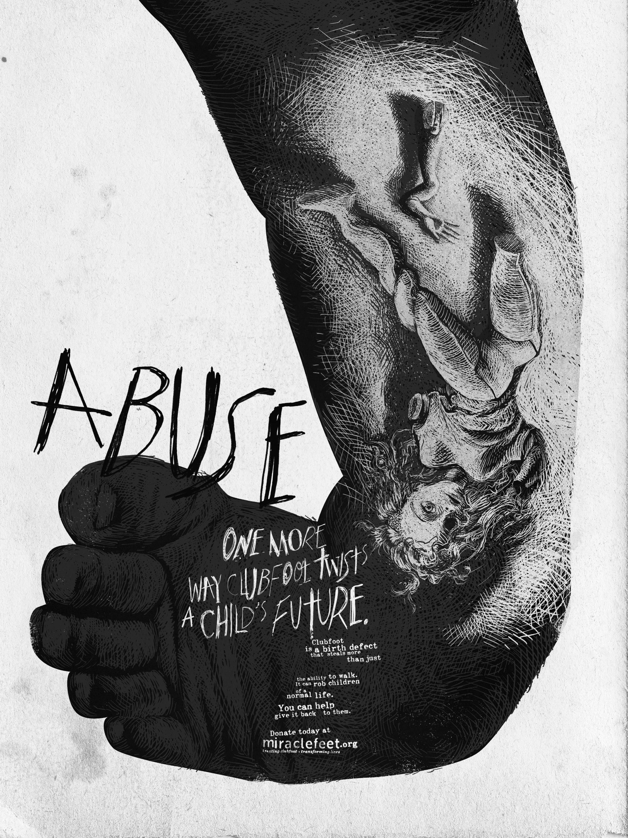 Thumbnail for Abuse