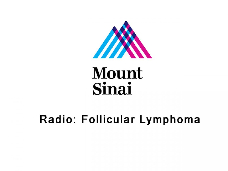 Follicular Lymphoma Thumbnail